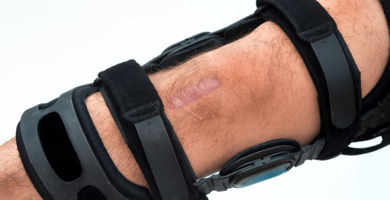 black hiking knee braces