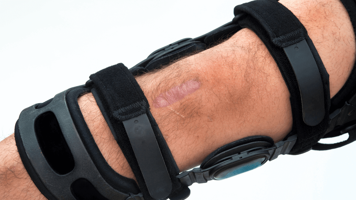 Benefits of Using Hiking Knee Braces